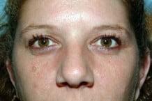 Eyelid Surgery Patient 100