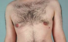 Male Breast Reduction Patient 106