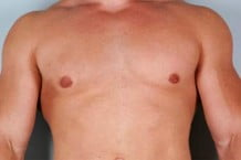 Male Breast Reduction Patient 107