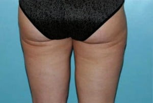 Liposuction Patient 109