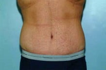 Tummy Tuck Patient 111
