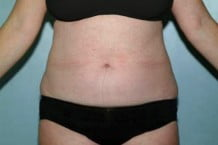 Liposuction Patient 112