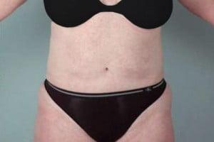 Liposuction Patient 112