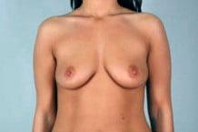 Breast Augmentation Patient 113