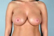 Breast Augmentation Patient 113