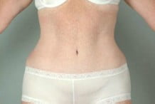 Tummy Tuck Patient 117