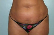Tummy Tuck Patient 118