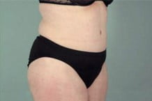 Tummy Tuck Patient 119