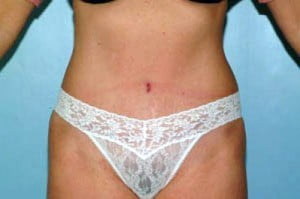 Tummy Tuck Patient 126