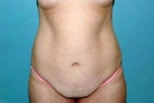Tummy Tuck Patient 127