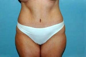 Tummy Tuck Patient 127