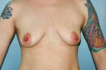 Breast Augmentation Patient 132