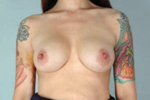 Breast Augmentation Patient 132