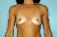 Breast Augmentation Patient 134