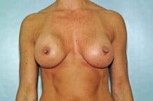 Breast Augmentation Patient 134