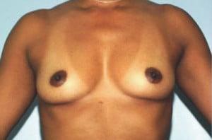 Breast Augmentation Patient 137