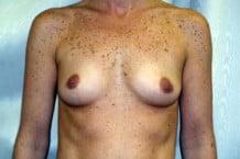 Breast Augmentation Patient 143