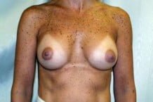 Breast Augmentation Patient 143