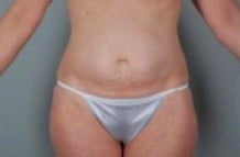 Tummy Tuck Patient 144