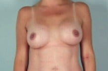 Breast Augmenation Patient 149