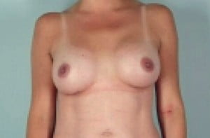 Breast Augmenation Patient 149