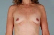 Breast Augmentation Patient 154