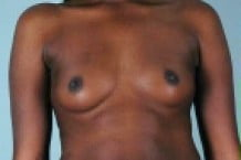 Breast Augmentation Patient 155