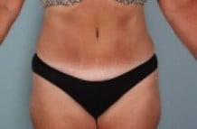 Tummy Tuck Patient 156