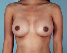 Breast Augmentation Patient 164