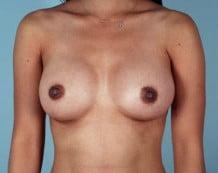 Breast Augmentation Patient 164