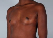 Breast Augmentation Patient 165