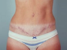 Tummy Tuck Patient 167