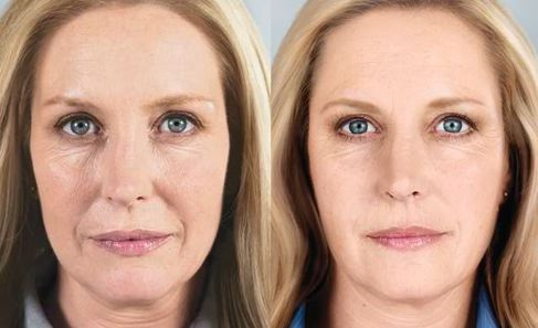 sculptra before after