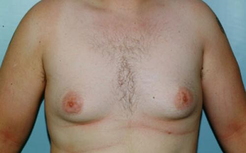 Male Breast Reduction Patient 105