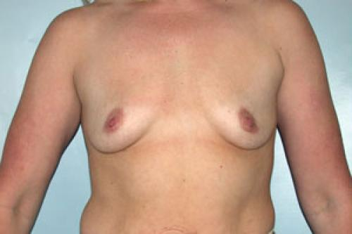 Breast Augmentation Patient 141