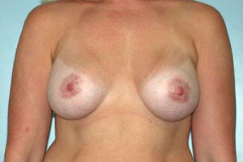 Breast Augmentation Patient 141