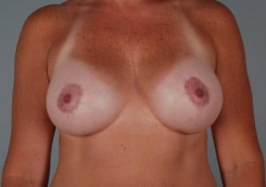 Breast Lift with Augmentation Patient 162
