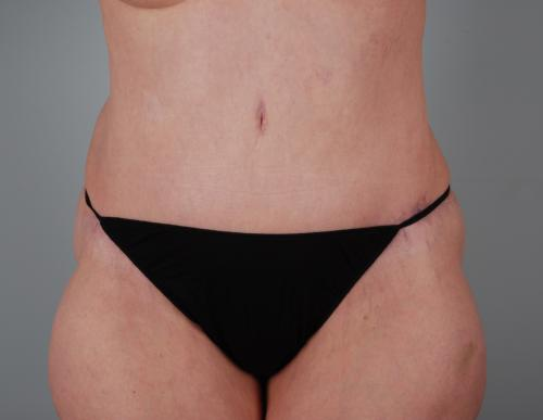 Tummy Tuck Patient 168