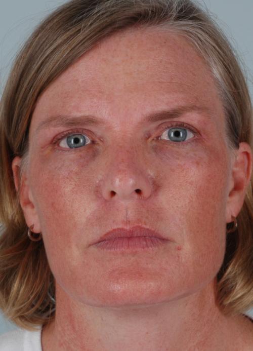 Botox Patient 170