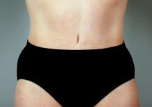Tummy Tuck Patient 110