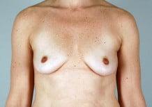 Breast Augmentation Patient 110