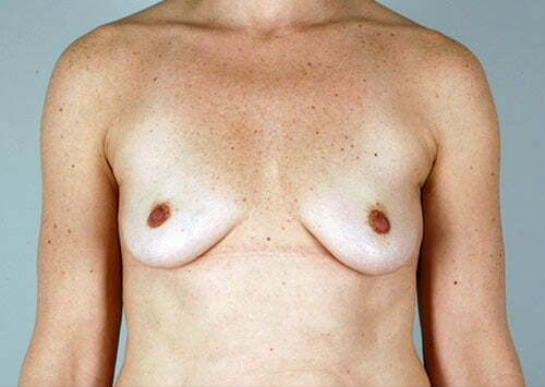 breast-augmentation-01a-before