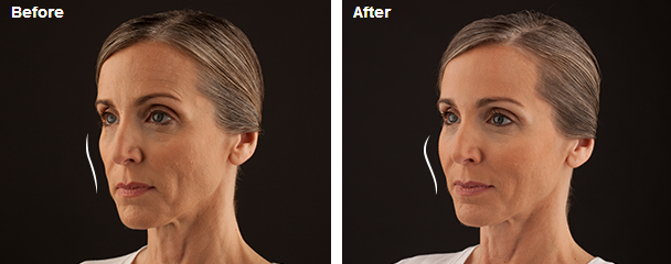 JUVÉDERM VOLUMA™ XC before and after photo showing increased volume in the cheeks.