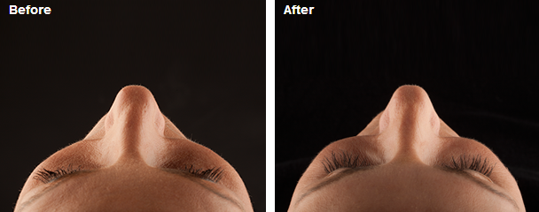 JUVÉDERM VOLUMA™ XC before and after showing increased volume in the cheeks.