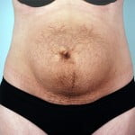 abdominoplasty-2182a-before