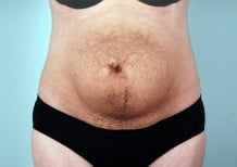 Tummy Tuck Patient 2182