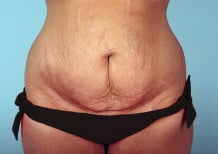 Tummy Tuck Patient 2189