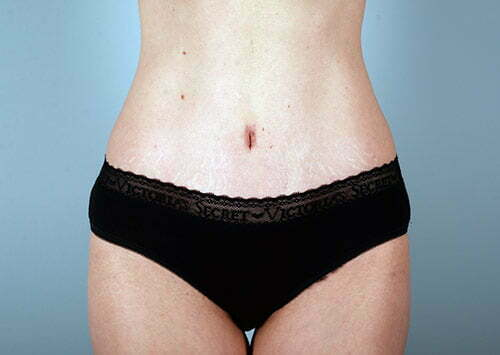abdominoplasty-2196a-after
