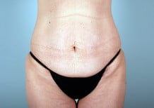 Tummy Tuck Patient 2196