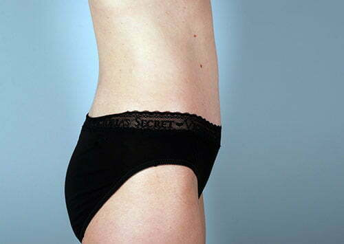 abdominoplasty-2196c-after